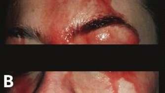 Bluthochdruck Themenseite